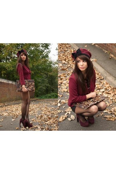 Topshop shoes - Topshop hat - Topshop blazer - asos bag - warehouse shorts